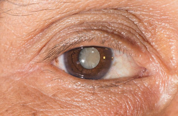 Catarata Olhos Oftalmocentro
