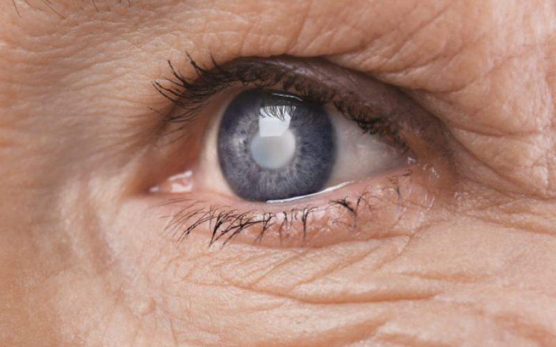 Glaucoma - Oftalmocentro Uberaba