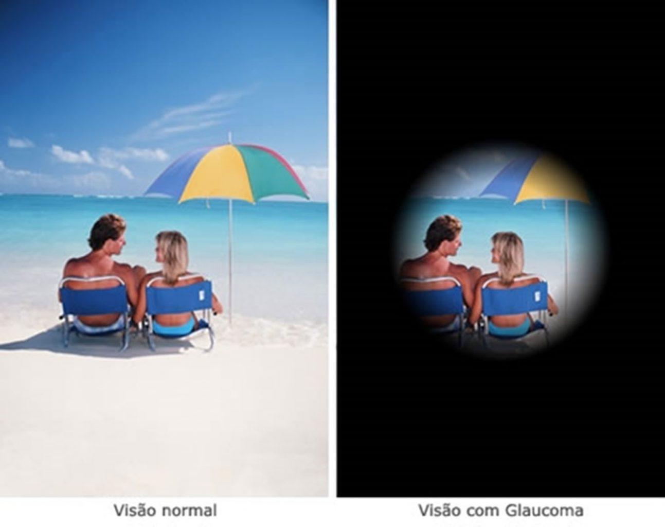 exemplo de visão com glaucoma